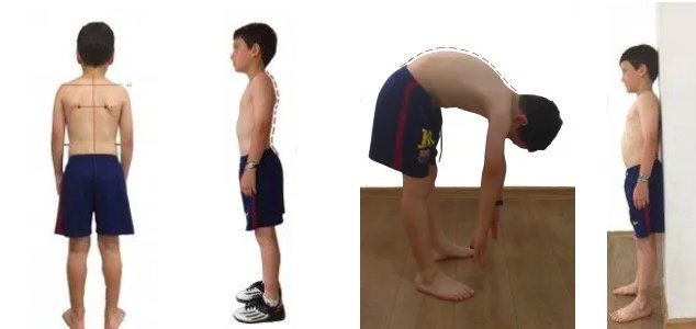 Checking Your Child's Posture